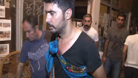 One of two victim of last Thursday's attack on activists at Camp Armen (Source: Hurriyet)