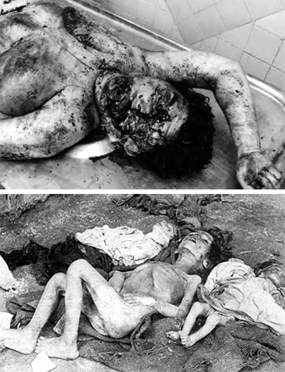 Top: An Armenian victim of the 1988 Sumgait Pogrom. Above: An  victim of  the 1915 Armenian Genocide